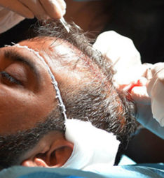 during-operation hair transplant