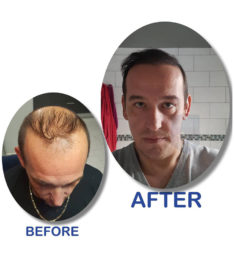 before_after-hair_transplant Phots